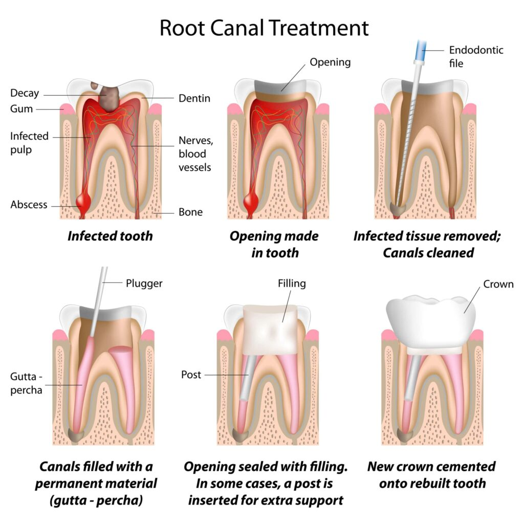 Root Canal Boca Raton Scaled