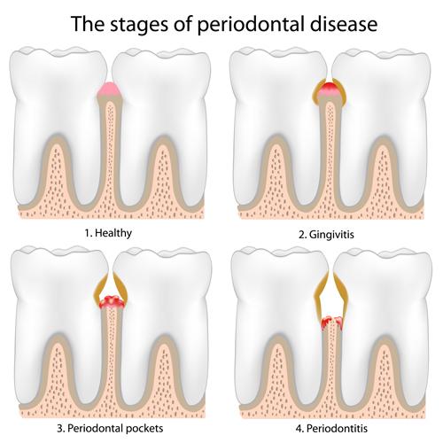 Periodontal DiseaseGum Disease