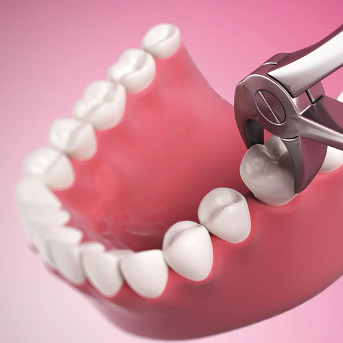 Tooth Extraction Boca Raton