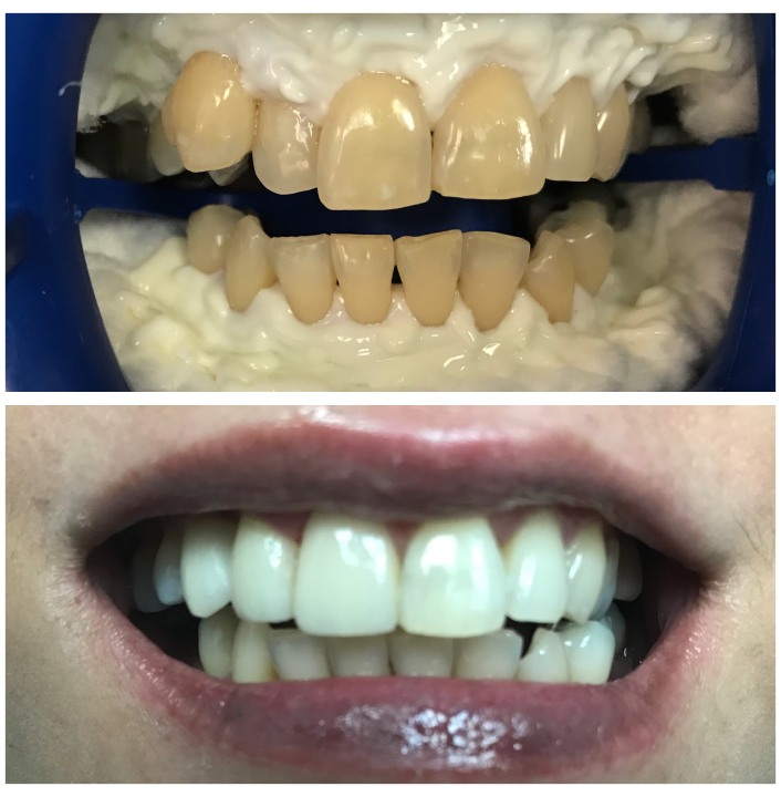 Things To Know About Dental Implants - Bright Horizons Dental