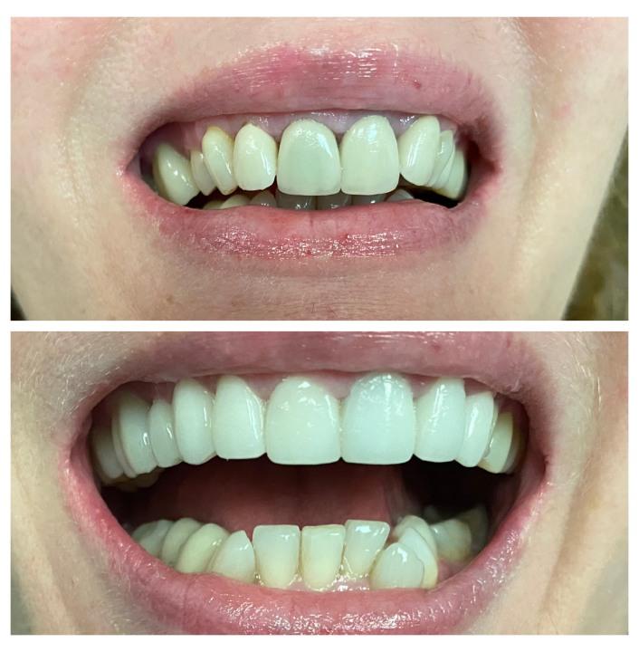 Bright Horizons Dental